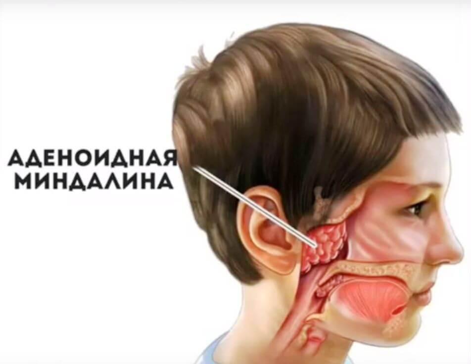 вылечить аденоиды у ребенка